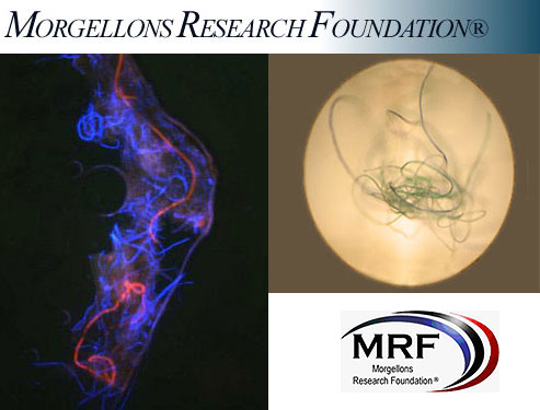 The Morgellons Research Foundation Images of the Fibers